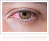 Glaucoma Treatment by Gerstein Eye Institute in Chicago